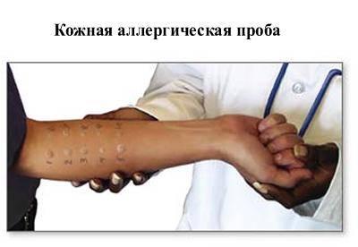 кожная аллергопроба