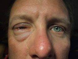 Аллергия на опилки у ребенка — Про Маму