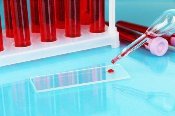Анализ крови общий аллергии признак