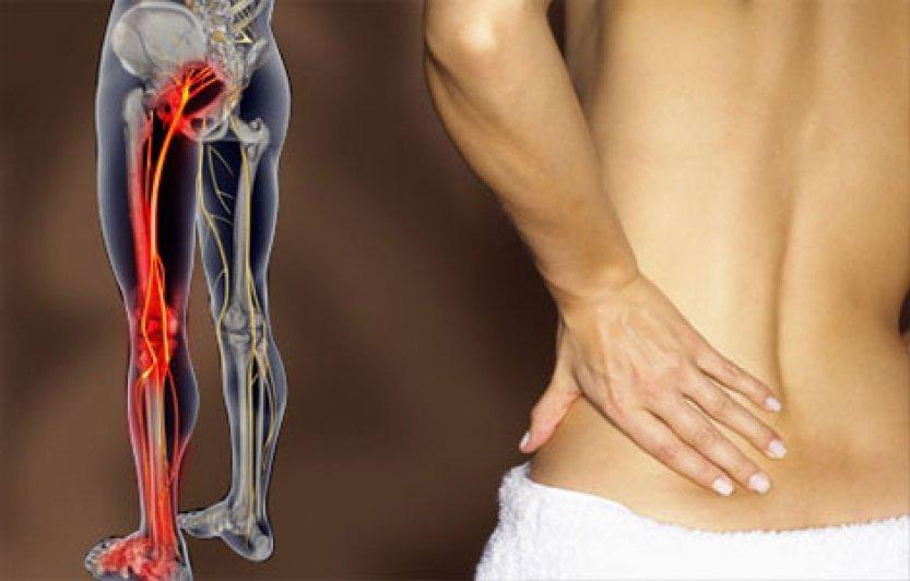 Заболевание нервной системы – Ишиас. Симптомы, диагностика, лечение