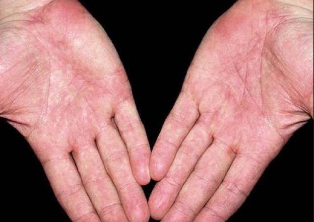 Как проявляет себя аллергия при гепатите С