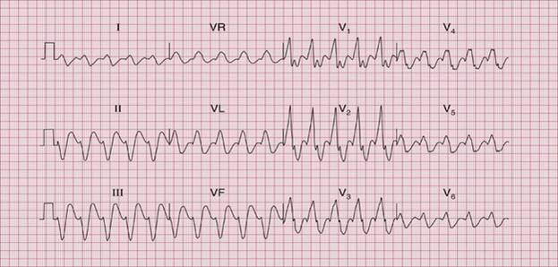 Влияние противоаллергических препаратов на сердце
